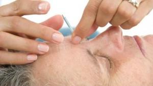 Acupunctuurbehandeling